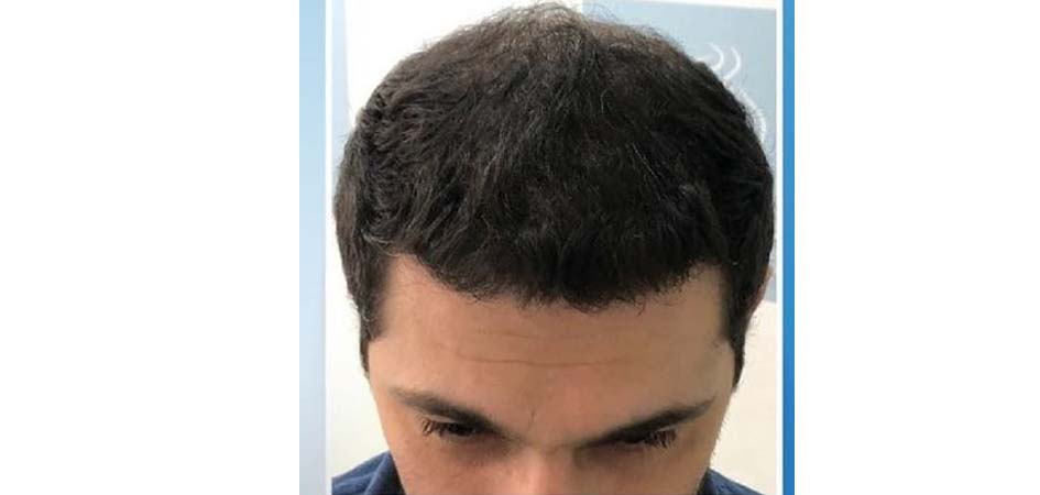 Hair Transplant Center In Dubai after_2.jpg