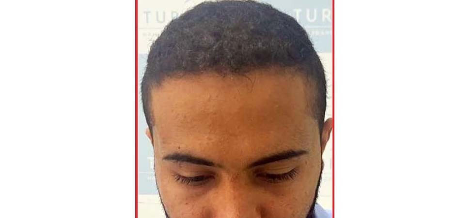 Hair Transplant Center In Dubai after_3.jpg