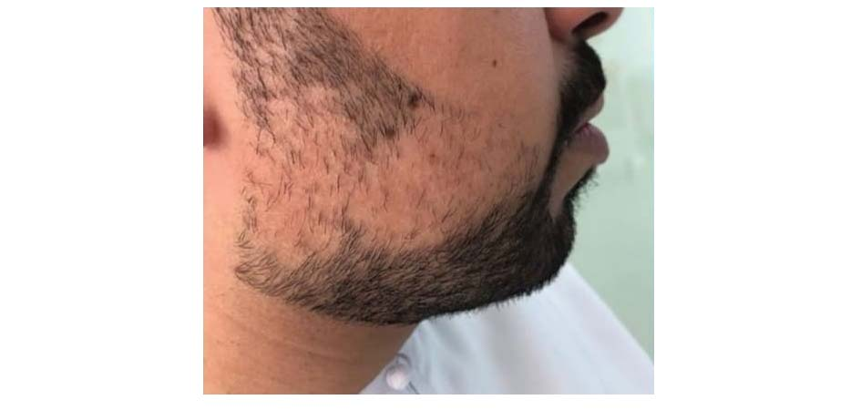 Hair Transplant Center In Dubai before_4.jpg